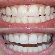 Teeth Whitening Essential Dental Care